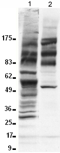 Western blot - Amyloid Precursor Protein (phospho Y757) antibody (ab19850)