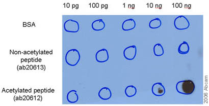 Dot Blot - Anti-NF-kB p65 (acetyl K310) antibody (ab19870)