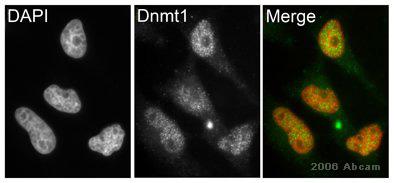 Immunocytochemistry/ Immunofluorescence - Dnmt1 antibody (ab19905)