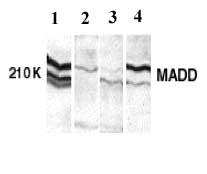 Western blot - Anti-DENN antibody (ab2043)