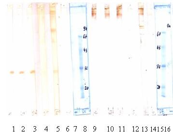 Western blot - Marburg Virus antibody [FM213] (ab2059)