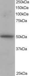 Western blot - PACSIN3 antibody (ab2226)