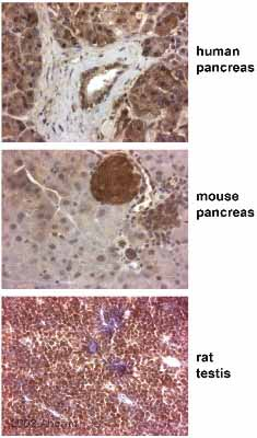 Immunohistochemistry (Formalin/PFA-fixed paraffin-embedded sections) - Paxillin antibody (ab2264)