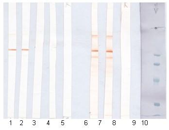 Western blot - Bacillus anthracis spore antigen antibody [SA26] (ab2281)