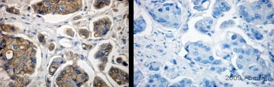 Immunohistochemistry (Formalin/PFA-fixed paraffin-embedded sections) - ErbB 2 antibody (ab2428)