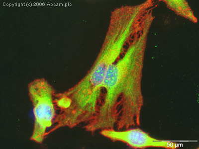 Immunocytochemistry/ Immunofluorescence - p53 antibody (ab2433)