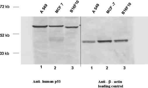 Western blot - Anti-p53 antibody (ab2433)