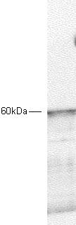 Western blot - PDPK1 antibody (ab2495)