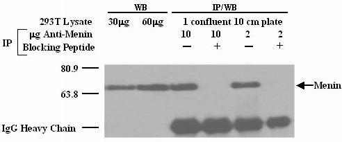Western blot - Menin antibody - ChIP Grade (ab2605)