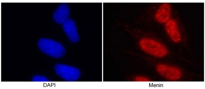 Immunocytochemistry/ Immunofluorescence - Menin antibody (ab2605)