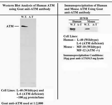 - ATM antibody (ab2629)