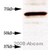 Western blot - CETP antibody [ATM192] (ab2726)