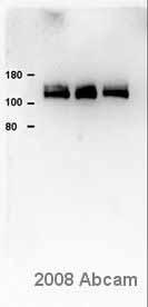 Western blot - Calcium Pump PMCA4 ATPase antibody [JA9] (ab2783)