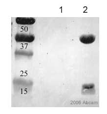 Immunoprecipitation - ADP Ribosylation Factor antibody [1D9] (ab2806)