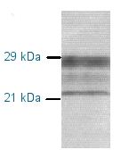 Western blot - Prion protein PrP antibody [3B8 / D5] (ab2881)