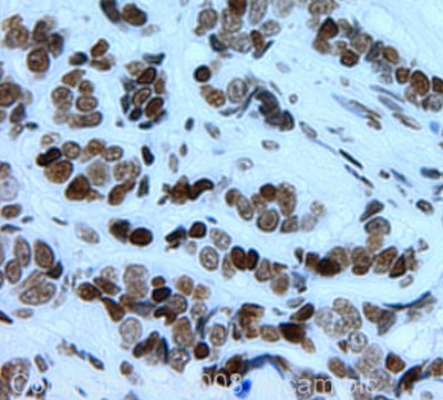 Immunohistochemistry (Formalin/PFA-fixed paraffin-embedded sections) - Histone H4 (di methyl K79) antibody (ab2885)