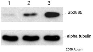 Western blot - Histone H4 (di methyl K79) antibody (ab2885)