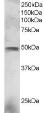 Western blot - ESE1 antibody (ab2934)