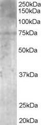 Western blot - MPP5 antibody (ab20511)