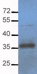 Western blot - Apolipoprotein E  antibody (ab20874)