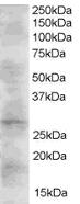 Western blot - Anti-DKK2 antibody (ab21187)