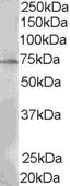 Western blot - LNK antibody (ab21203)