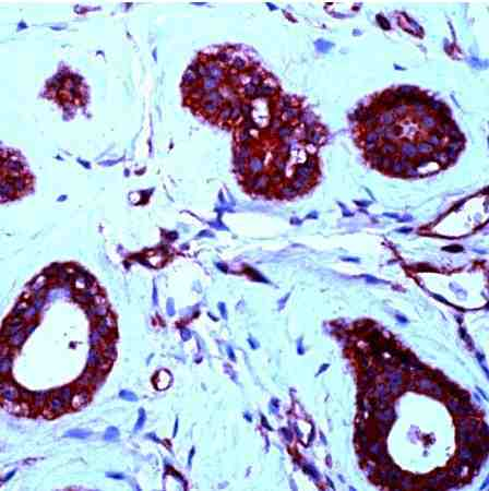 Immunohistochemistry (Formalin/PFA-fixed paraffin-embedded sections) - PDGF BB antibody (ab21234)