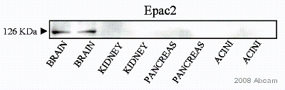 Western blot - Epac2 antibody (ab21238)