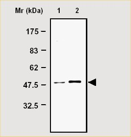 Immunoprecipitation - Glutamine Synthetase antibody [8G9] (ab21256)