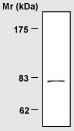 Western blot - Transglutaminase 2 antibody [14G2] (ab21258)