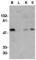 Western blot - GDNF Receptor alpha 1 antibody (ab21588)