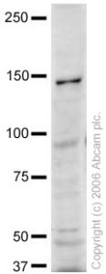 Western blot - Hamartin antibody (ab21632)