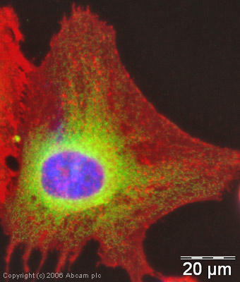 Immunocytochemistry/ Immunofluorescence - GRP78 BiP antibody (ab21685)