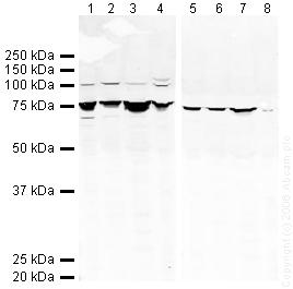 Western blot - GRP78 BiP antibody (ab21685)
