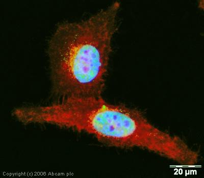 Immunocytochemistry/ Immunofluorescence - DDX5 antibody (ab21696)