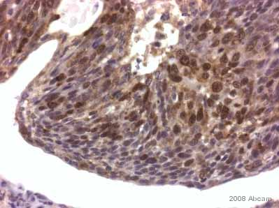 Immunohistochemistry (Formalin/PFA-fixed paraffin-embedded sections) - DDX5 antibody (ab21696)