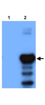 Western blot - PLVAP antibody (ab21848)