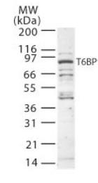 Western blot - TRAF6BP antibody (ab22049)