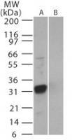 Western blot - SARS 3b antibody (ab22054)