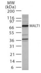 Western blot - MALT1 antibody (ab22103)