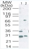 Western blot - Langerin antibody (ab22111)