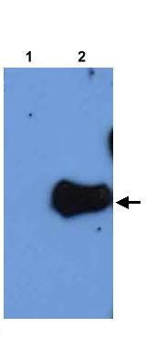 Western blot - HPS2 antibody (ab22146)