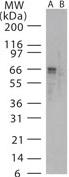 Western blot - SARS spike glycoprotein antibody (ab22159)