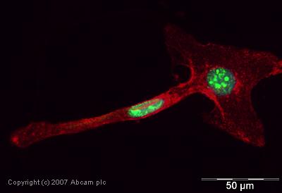 Immunocytochemistry/ Immunofluorescence - SMARCC1 antibody (ab22355)