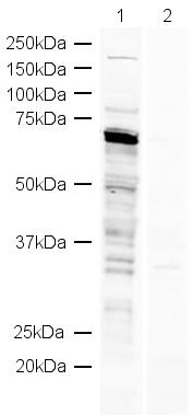 Western blot - DDX5 antibody (ab21696)