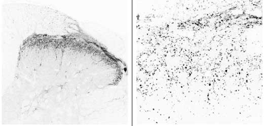 Immunocytochemistry/ Immunofluorescence - CGRP antibody (ab22560)