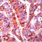 Immunohistochemistry (Formalin-fixed paraffin-embedded sections) - E Cadherin antibody [SPM471] (ab22585)