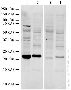 Western blot - Glutathione Peroxidase 1 antibody (ab22604)