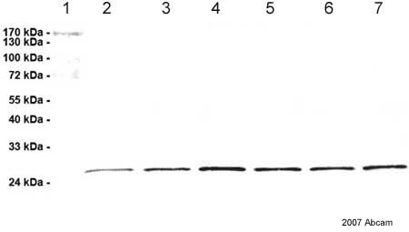 Western blot - Proteasome 20S beta2 antibody [MCP165] (ab22650)