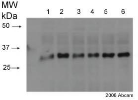 Western blot - Proteasome 20S alpha 2 antibody [MCP21] (ab22666)